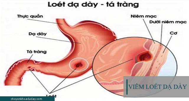 Viêm loét dạ dày là căn bệnh có thể chữa được dứt điểm hoàn toàn