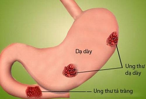 Viêm xung huyết dạ dày có nguy hiểm không?