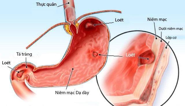 Bệnh viêm loét dạ dày