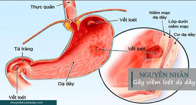 Nguyên nhân gây bệnh viêm loét dạ dày