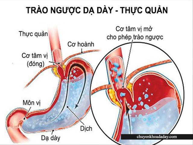 Chứng bệnh trào ngược dạ dày thực quản