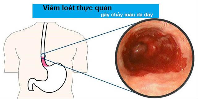 Viêm loét thực quản gây xuất huyết dạ dày