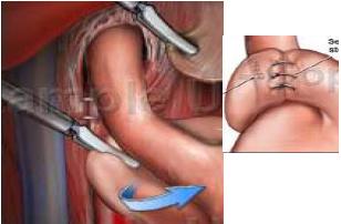 Cách chữa trào ngược dạ dày thực quản bằng phẫu thuật