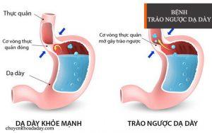 Trào ngược dạ dày thực quản có thể dẫn đến ung thư thực quản