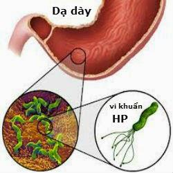 Kết quả hình ảnh cho khuẩn hp trong dạ dày