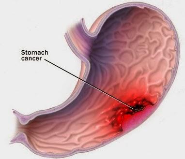 Dấu hiệu viêm loét dạ dày dễ nhận biết
