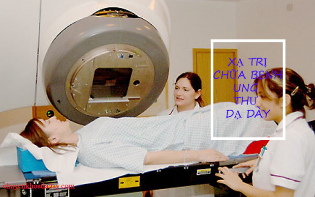 Điều trị ung thư dạ dày bằng phương pháp xạ trị
