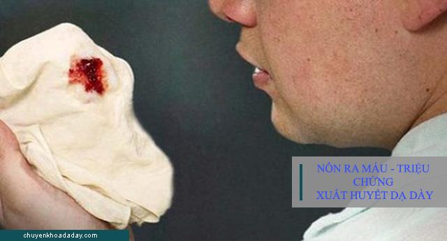 Nôn ra máu - Dấu hiệu đặc trưng của bệnh xuất huyết dạ dày