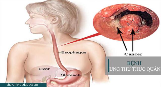 Ung thư thực quản là căn bệnh nguy hiểm