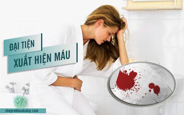 triệu chứng viêm loét đại trực tràng chảy máu