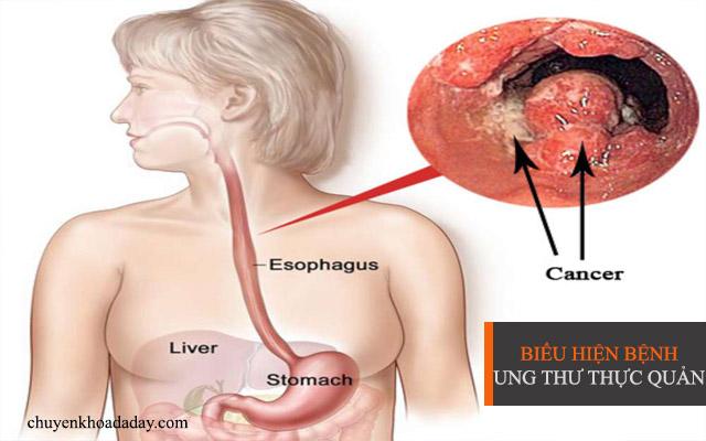 Ung thư thực quản gây nguy hiểm đến tính mạng người bệnh