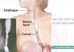 Ung thư thực quản có chữa được không?