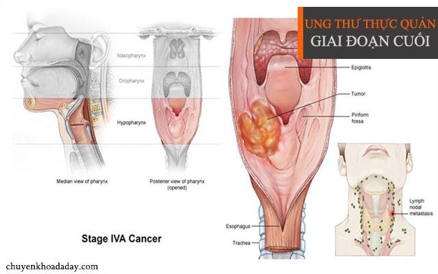 Bệnh ung thư thực quản giai đoạn cuối