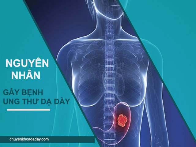 Ung thư dạ dày do nhiều nguyên nhân gây ra