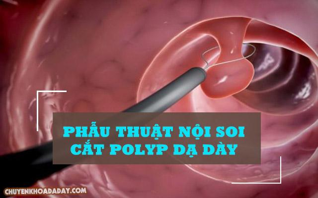 Phẫu thuật nội soi cắt Polyp dạ dày