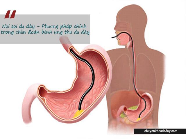 Nội soi dạ dày - Phương pháp được sử dụng phổ biến trong chẩn đoán ung thư dạ dày