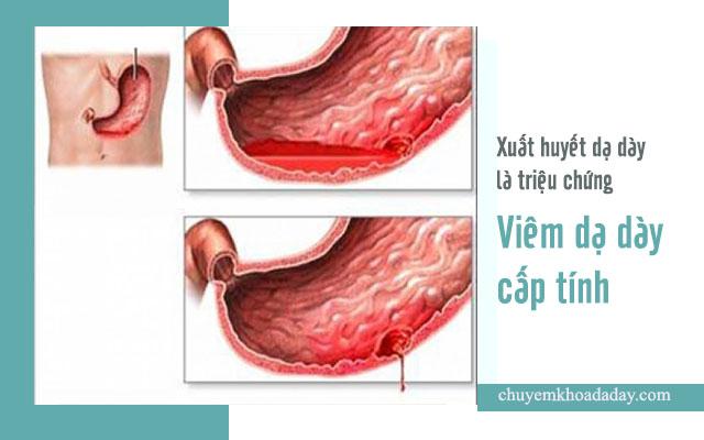 dấu hiệu viêm dạ dày cấp tính