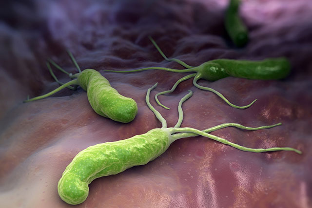Cách chăm sóc sức khỏe khi bị vi khuẩn hp