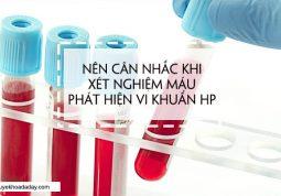 Không nên dùng phương pháp xét nghiệm máu để tìm vi khuẩn Hp