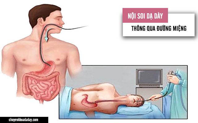 Nội soi dạ dày thông qua đường miệng