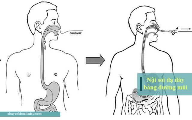 Nội soi dạ dày bằng đường mũi