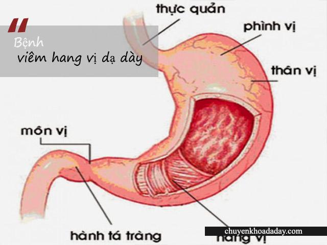 Bệnh viêm hang vị dạ dày nên ăn gì và kiêng gì cho tốt?