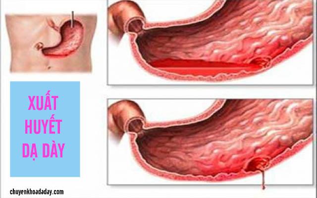 Nguyên nhân dẫn đến xuất huyết dạ dày