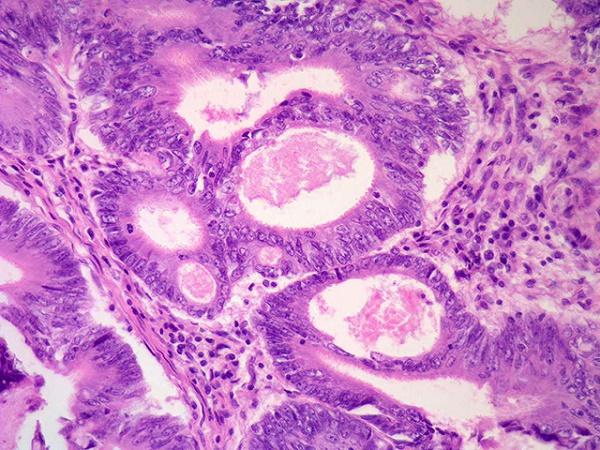 Bệnh Carninoma dạ dày (ung thư dạ dày dạng biểu mô)-2