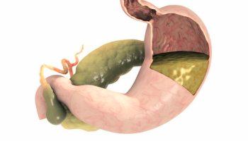 Bệnh liệt dạ dày: Nguyên nhân, dấu hiệu và cách điều trị-2