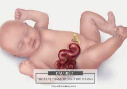 Thoát vị thành bụng ở trẻ sơ sinh