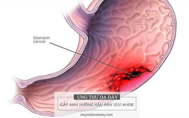 Ung thư dạ dày gây ảnh hưởng xấu đến sức khỏe người bệnh