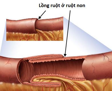 Dấu hiệu nhận biết sớm bệnh lồng ruột ở trẻ em-3