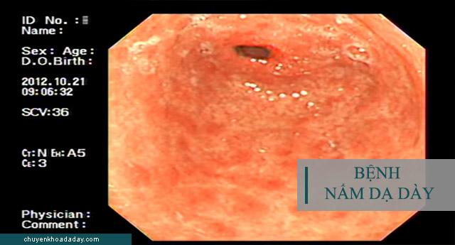 Nguyên nhân - Triệu chứng gây bệnh nấm dạ dày