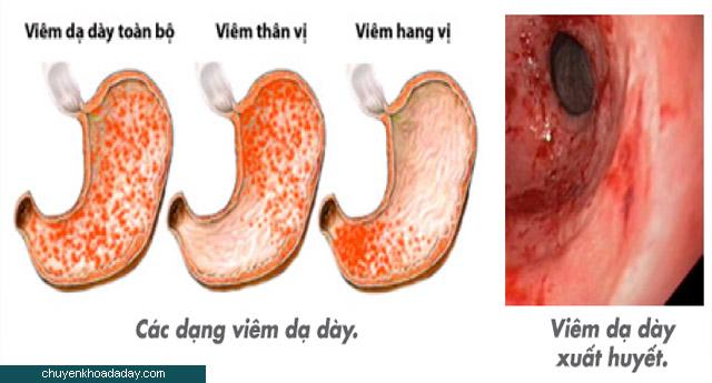 Hình ảnh bệnh viêm hang vị dạ dày phù nề xung huyết