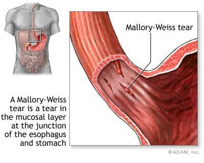 Cách điều trị hội chứng Mallory Weiss-1