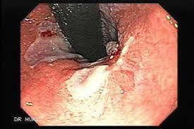 Cách điều trị hội chứng Mallory Weiss-2