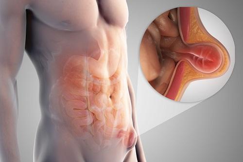 Dấu hiệu thoát vị thành bụng và cách điều trị-2
