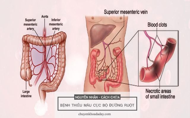 Nguyên nhân và cách điều trị thiếu máu cục bộ đường ruột