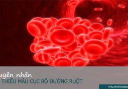 Xuất hiện các cục máu đông là một trong những nguyên nhân gây bệnh thiếu máu cục bộ đường ruột