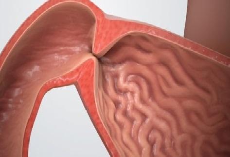 Quy trình phẫu thuật hẹp môn vị ở trẻ sơ sinh-3