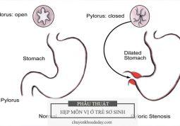 Chứng hẹp môn vị dạ dày ở trẻ sơ sinh
