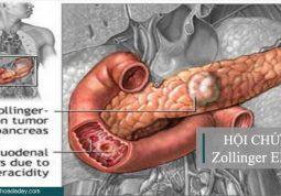 Hội chứng Zollinger Ellison