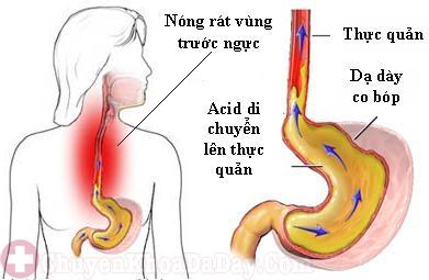 Ho, ù tai, khó chịu ở họng do trào ngược dạ dày?