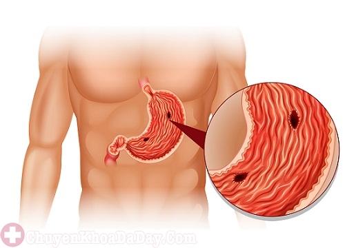 Vi khuẩn Helicobacter Pylori (Hp) có thể gây ung thư dạ dày