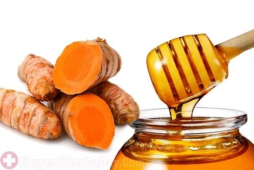 Nghệ vàng, mật ong trị đau bao tử đơn giản