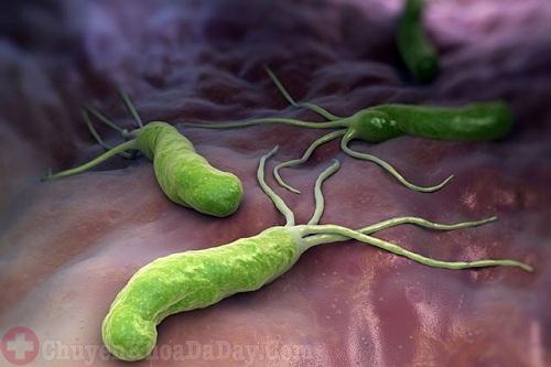 Vi khuẩn Hp có thể gây một số bệnh nguy hiểm