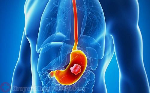 Làm gì khi bị đau thượng vị sau khi ăn?