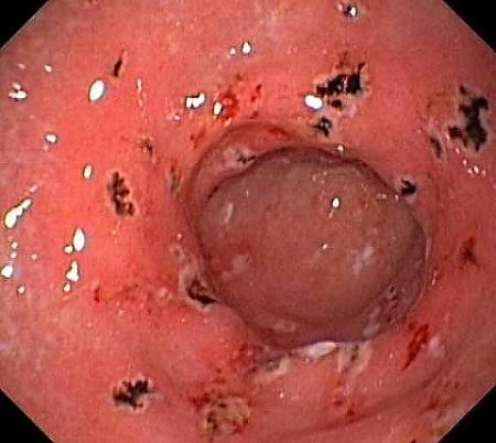Bệnh viêm trợt hang vị dạ dày