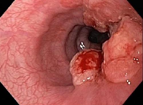 Vi khuẩn Hp thủ phạm gây ung thư dạ dày