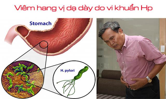 Nguyên nhân gây viêm hang vị dạ dày